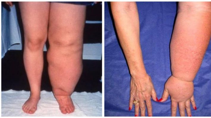 lymphedema arms and legs