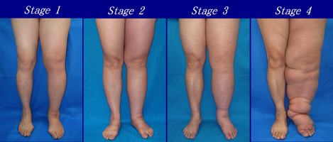 Lymphoedema stages