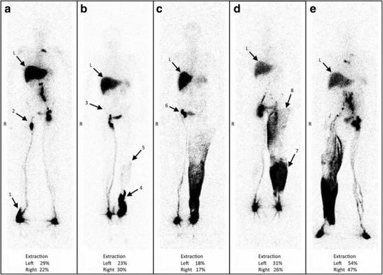 lymphoscintigraphy