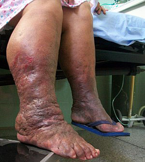 severe Lymphoedema