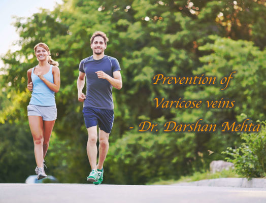 running prevent varicose veins